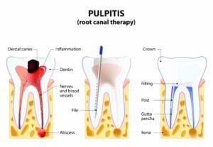 Diagram showing the various stages of a root canal