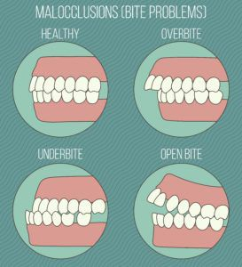 Chart showing different types of malocclusion