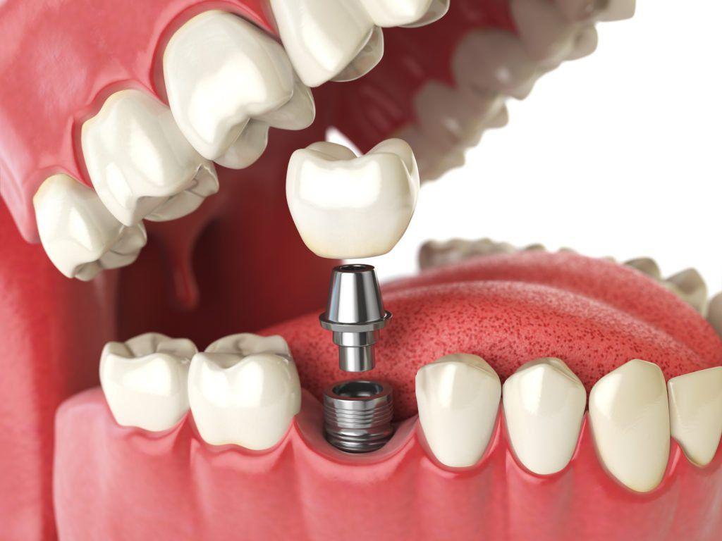Tooth human implant. Dental concept. Human teeth or dentures. 3d illustration