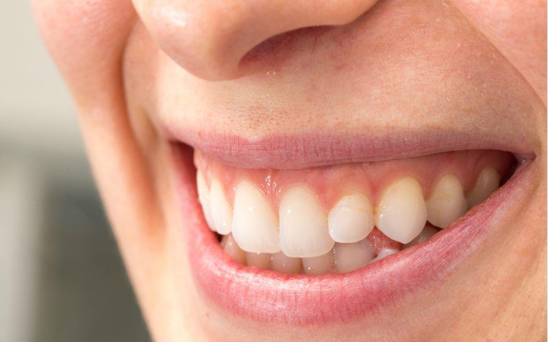woman smiling with healthy teeth