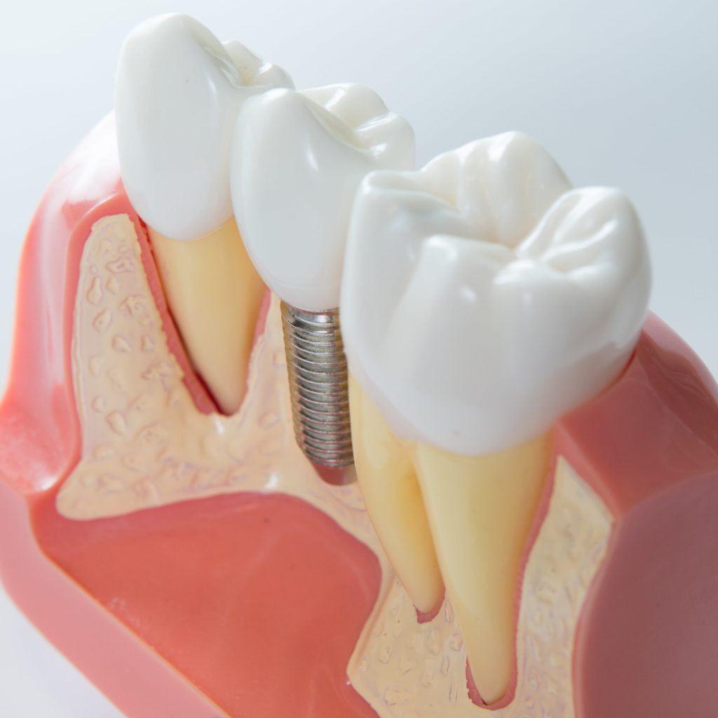 3d rendered image of a dental implant