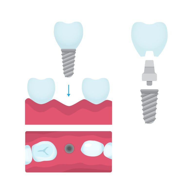Tooth Replacement Procedure