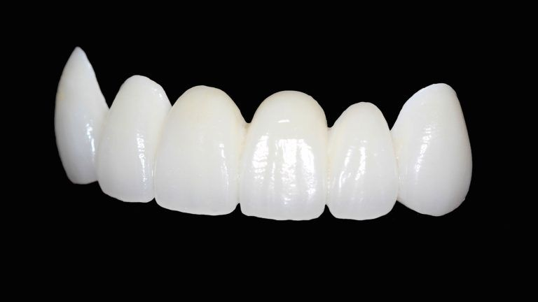 What are Zirconia Crowns?