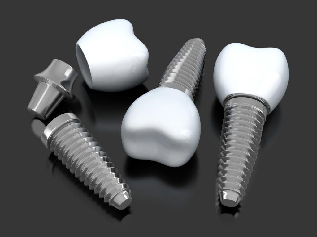 Multiple dental implants on a black background