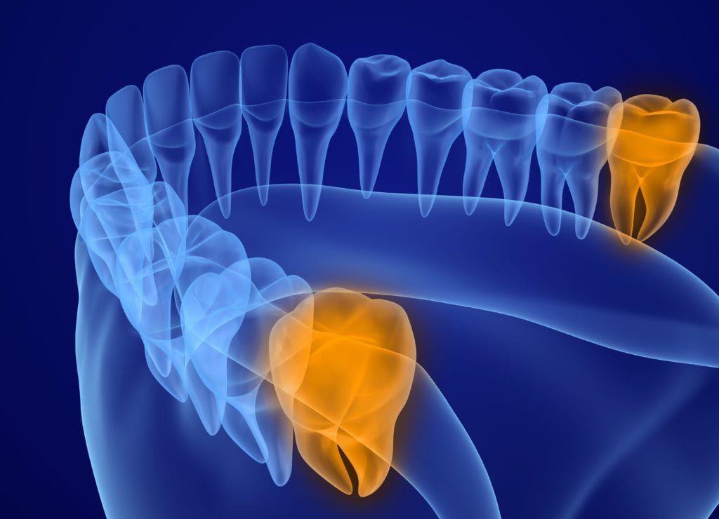 Why Do We Have Wisdom Teeth?