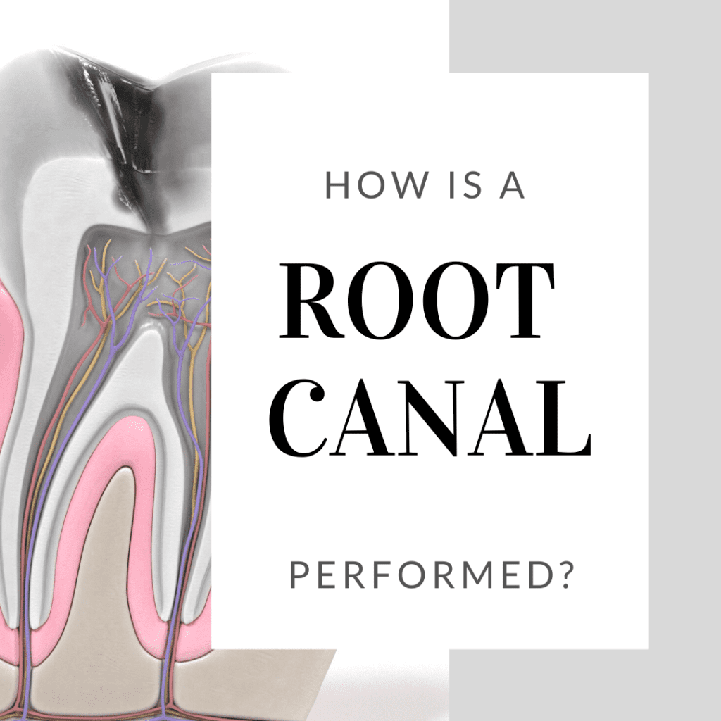 How is a Root Canal Performed