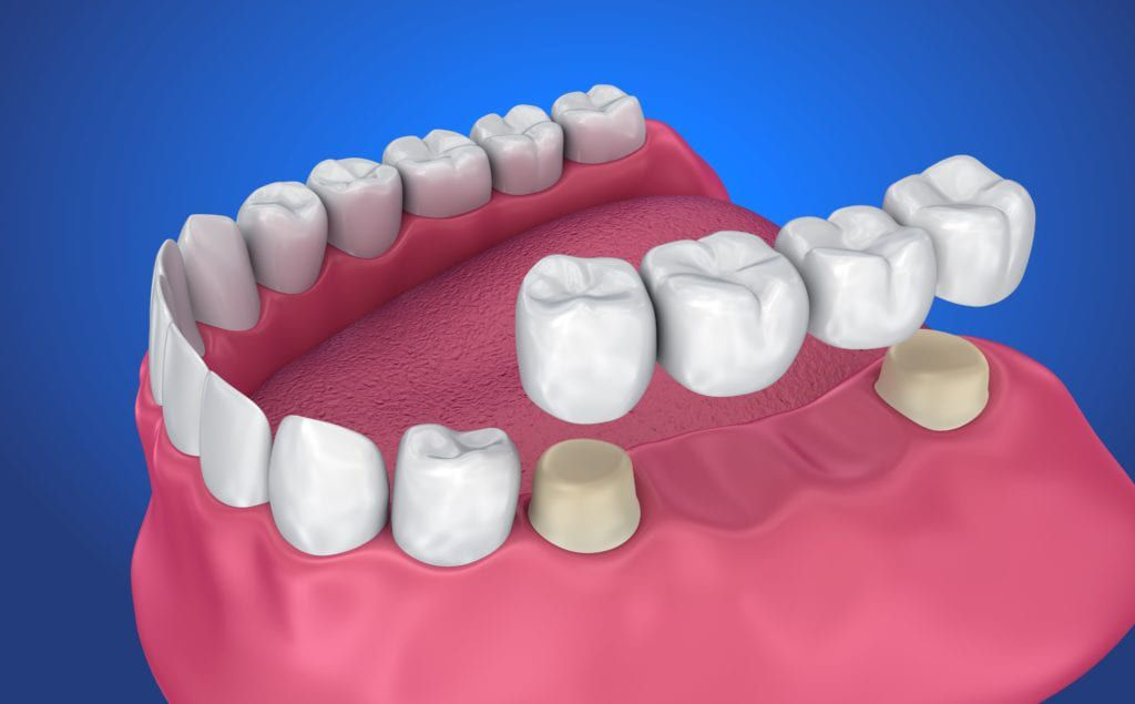 Different Types of Dental Crowns and Bridges