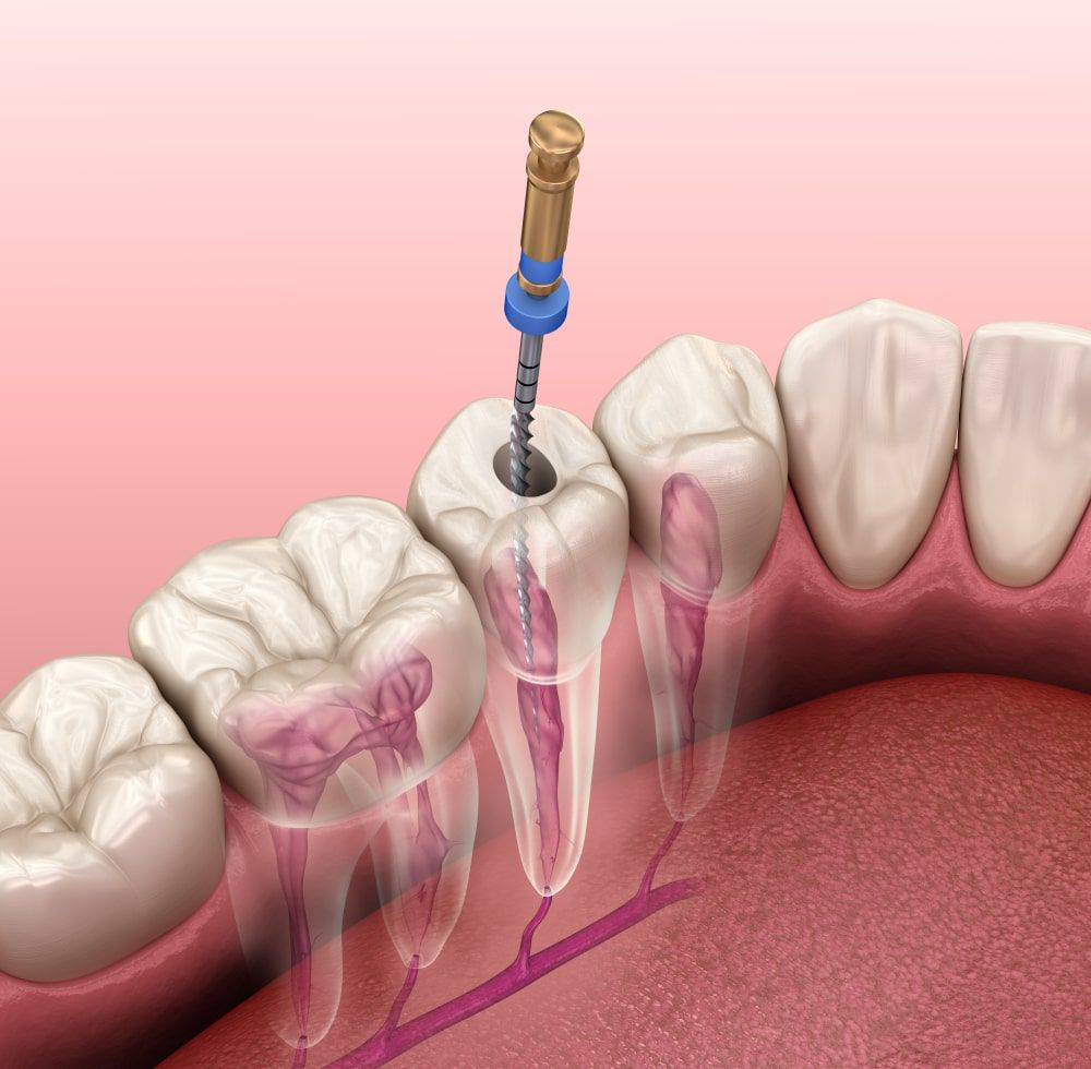 Root canal file being used during a root canal