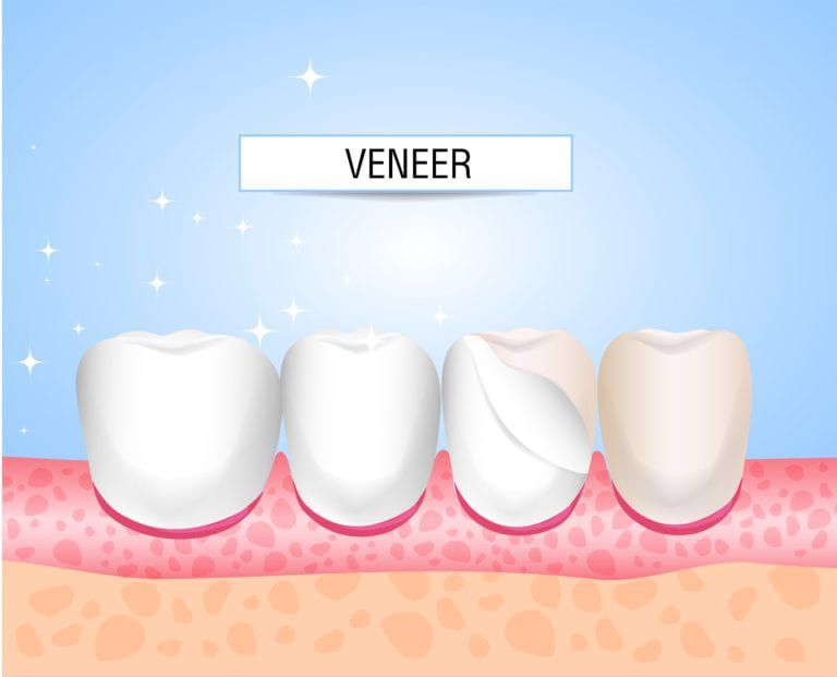 Traditional Veneers vs. Lumineers