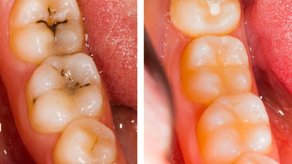 Teeth before and after fillings