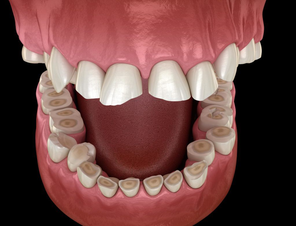 tooth enamel eroded by bruxism