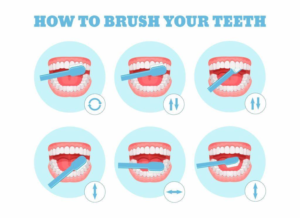 diagram on brushing teeth